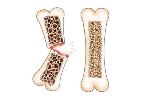 На 4-ой стадии остеопороза часто случаются переломы.
