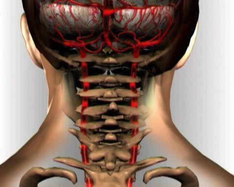 На фото – схематическое расположение вертебральных артерий