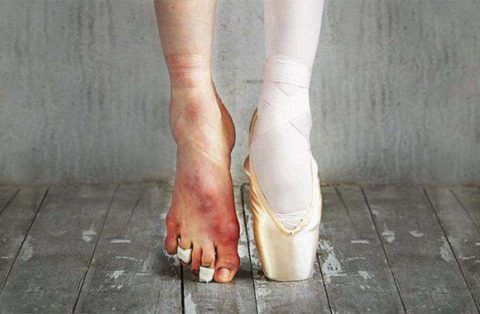 На фото деформация голеностопа у балерин