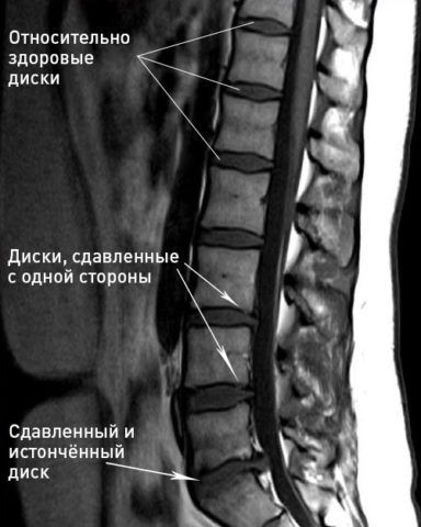 На фото наглядно показано истончение межпозвоночного диска
