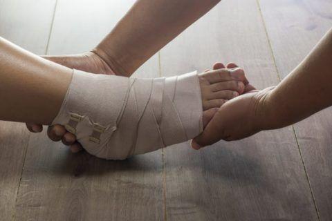 На фото показана фиксация эластичными бинтами. Специалист проверяет пальцы ног на присутствие синюшности, при сильном натяжении повязки.