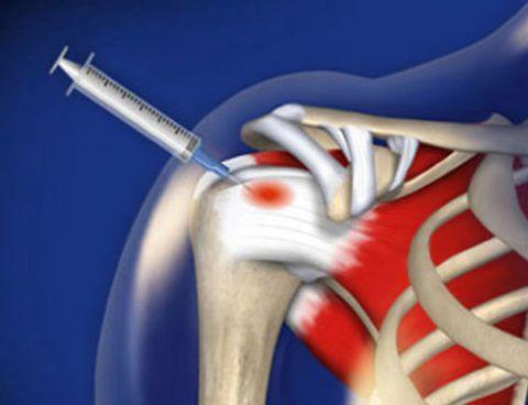 На фото показано введение лекарства в мышечную ткань