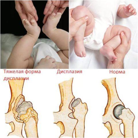 На фото представлен нормальный тазобедренный сустав, с незначительными изменениями и с тяжёлой формой дисплазии.