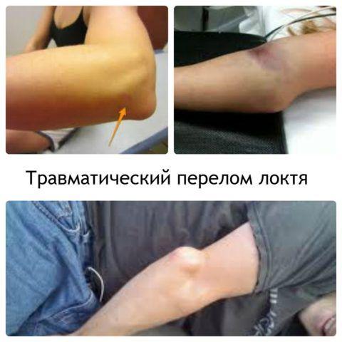 На фото представлен пациент с закрытой травмой локтя и смещением костных и хрящевых отломков.
