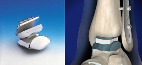 На фото слева показан эндопротез
