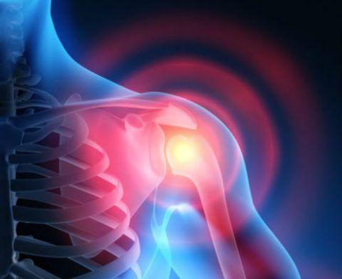 На фото воспаленная бурса в плечевом суставе
