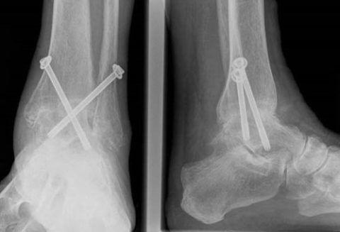 На рентгенограмме виден артродезированный голеностопный сустав