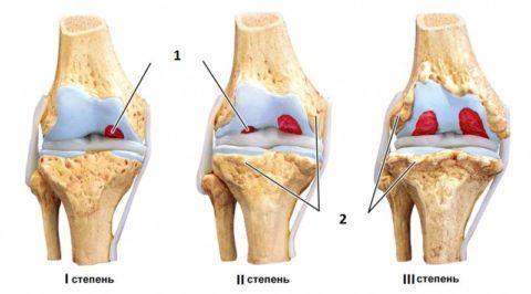 На рисунке: 1 – разрушение суставного хряща, 2 – формирование остеофитов