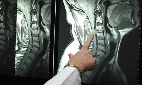 На снимке отлично видно крупную грыжу с3-с4, выпяченную в сторону спинного мозга