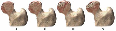 Начиная со II стадии артроза, деструкция распространяется внутрь бедренной головки