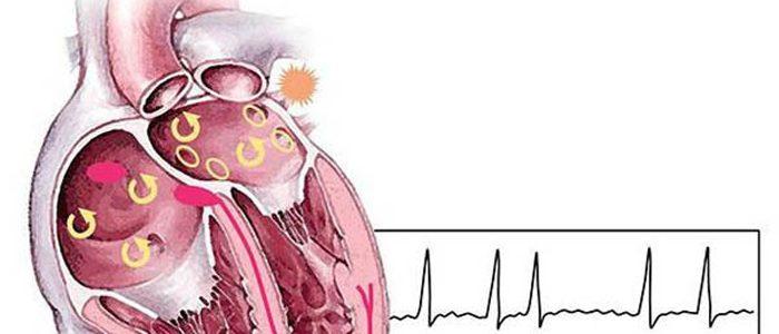 Причины и лечение наджелудочковой аритмии