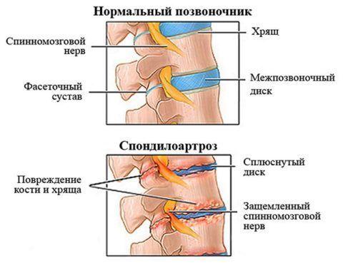 Наглядное представление патогенеза спондилоартроза