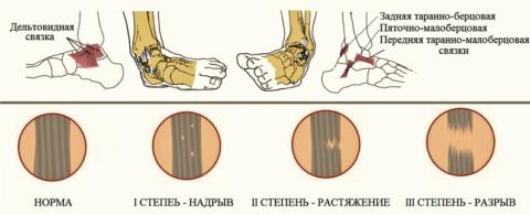 Названия наружных и внутренних связок голеностопа, возможные степени их повреждения