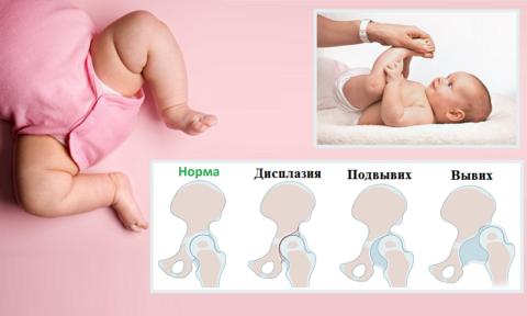 Не так давно Дисплазию тазобедренного сустава (код МКБ 10: Q56) у нас называли Врожденный вывих бедра