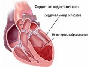 Увеличен левый желудочек сердца