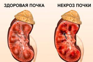Нефропатия при гипертензии