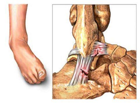 Неполный разрыв тяжей голеностопа