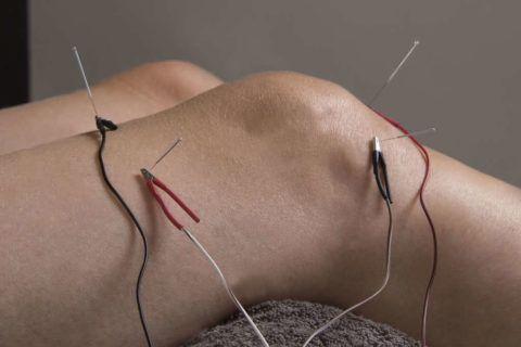 Нетрадиционные процедуры часто применяют на этапе восстановления при заболеваниях коленей.