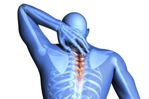 Невралгия может возникнуть в любом отделе позвоночника