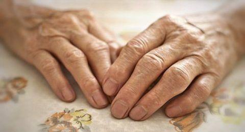 Незначительные изменения фаланг на второй стадии развития артрита.