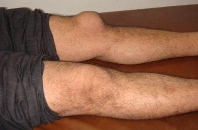 Никакое наружное средство не способно единолично вылечить серьезное заболевание суставов. Здесь необходим комплексный подход.