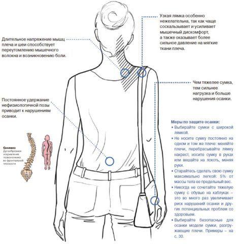 Ношение сумки на одном плече провоцирует нарушение осанки