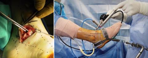 «Обычная» и малоинвазивная (артроскопическая) операции на голеностопном суставе