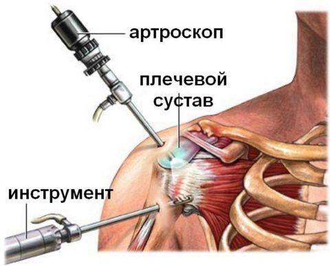 Операция на суставе необходима при разрушении или необратимых патпроцессах в его капсуле.