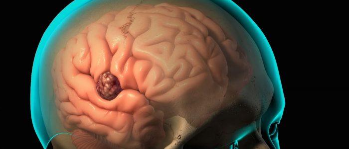 Давление и опухоль мозга