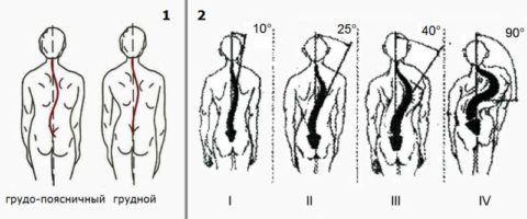 Основные типы сколиозов (1) и степени развития этой патологии (2) в грудном отделе