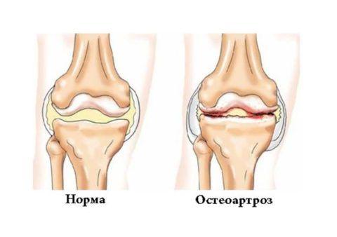 Остеоартроз - распространенная суставная патология