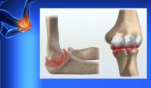Остеоартроз локтевого сустава