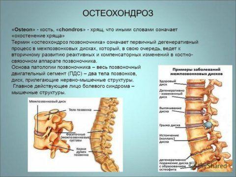 Остеохондроз при остеопорозе отягощается быстрым прогрессированием разрушения костных тканей в позвоночнике.
