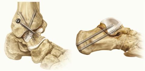 Остеотомия титановыми болтами голеностопного и подтаранного суставов