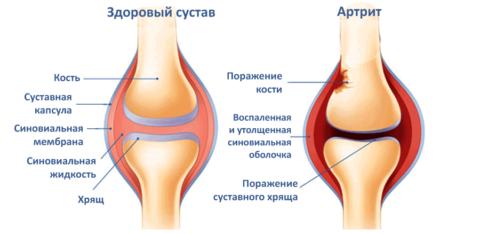 От области и степени поражения сустава при травме зависит насколько будет серьезно посттравматическое воспаление.