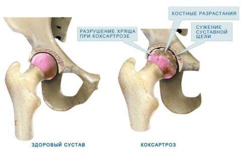 От того, насколько при коксартрозе был поражен сустав, и будет проявляться симптоматика болезни у пациента.