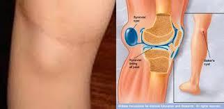 От того, по каким причинам скопилась жидкость в суставе, зависит лечение