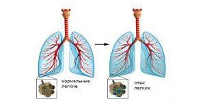 Симптомы и лечение пароксизмальной мерцательной аритмии