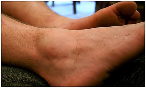 Отёк после ушиба передней части голеностопного сустава
