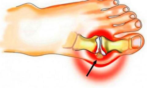 Отложение солевых отложений в суставах – приносит больному массу проблем, поэтому проблему необходимо решать еще на начальных этапах недуга.