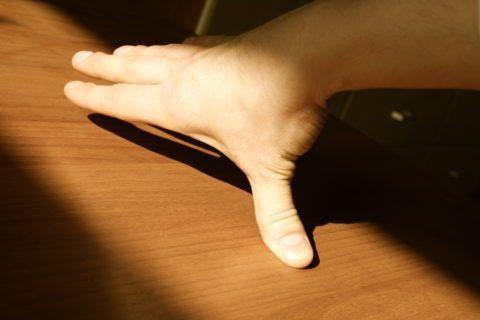 Падение с упором на ладонь может вызвать растяжение связок и вывих руки