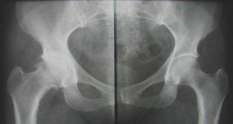 Перед оперативным вмешательством пациент проходит ряд обследований, в том числе и рентген (как на фото).