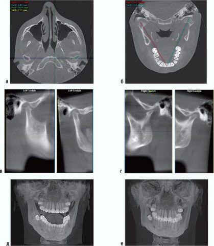 Перелом отростка нижней челюсти на результате исследование с помощью компьютерной томографии.