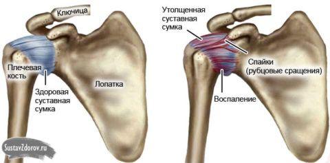 Шейно - плече - лопаточный участок скелета