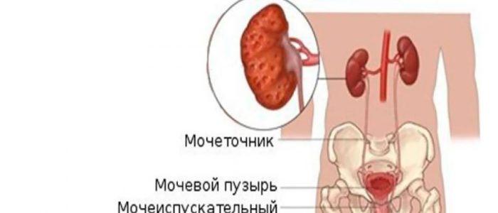 Гипертония при пиелонефрите