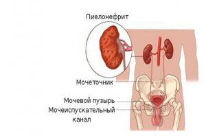 Давление при ангине