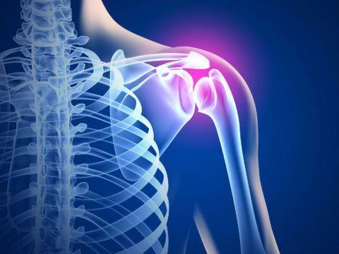 Плечевые суставы нечасто подвергаются дегенеративным процессам