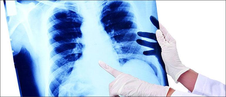 Пневмония у вич-инфицированных
