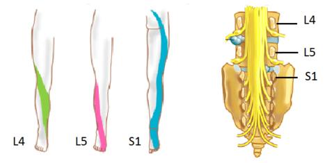 По иррадиации боли в ногу можно определить возле какого позвонка возникла проблема