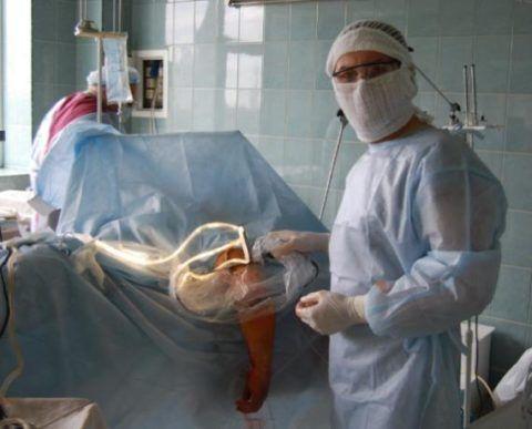 Подготовка к артроскопии локтевого сустава